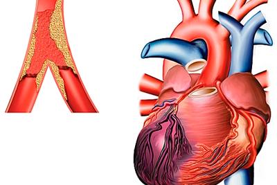 Почему инфаркт миокарда может повториться?