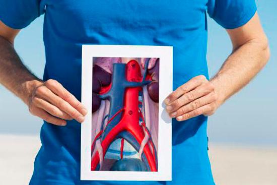 Операция аневризма брюшной аорты