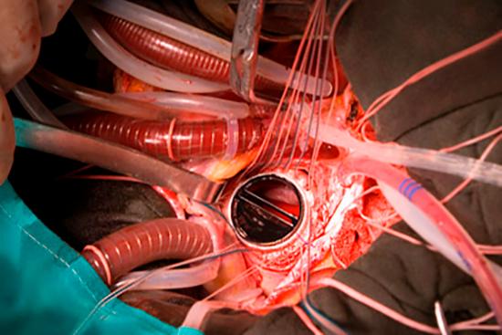 Протезирование клапанов сердца