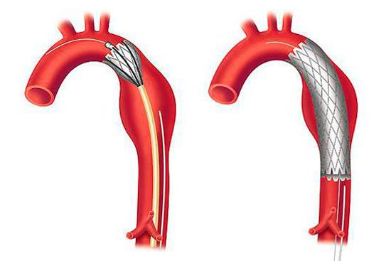 Расслаивающая аневризма брюшной аорты