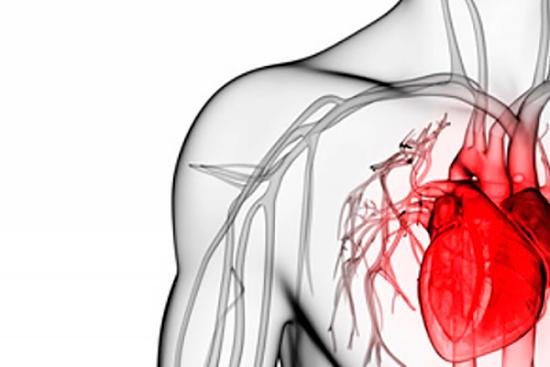 Расслаивающая аневризма грудной аорты