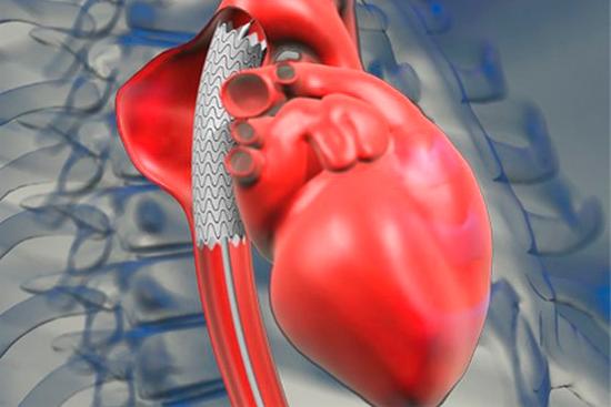 Постинфарктная аневризма: виды причины, диагностика и лечение
